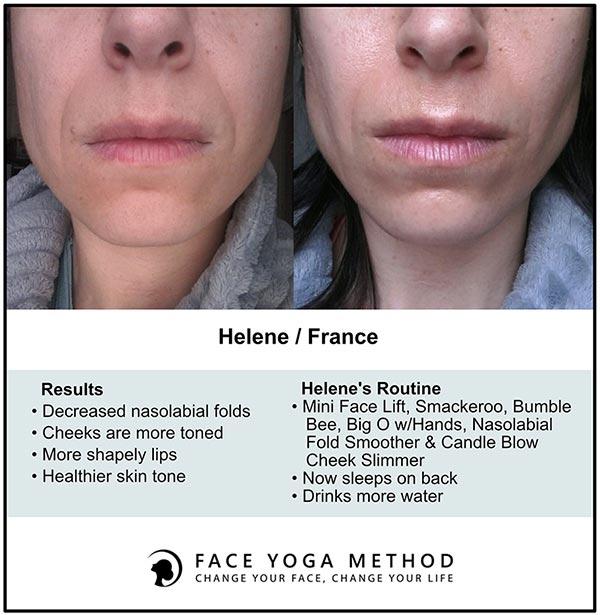 Helene Faceyoga vorher-nachher