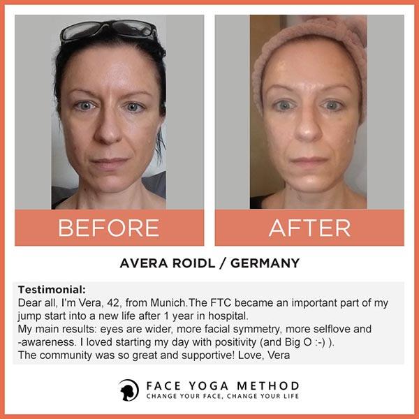Avera Roidl vorher nachher face yoga